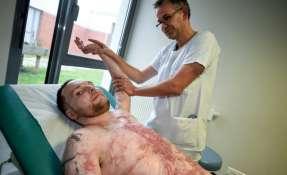 Un quemado casi integral sobrevive gracias al trasplante de la piel de su gemelo. Foto: Citizen.co.za