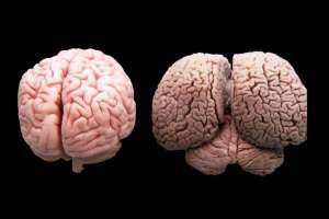 Cerebro humano vs Cerebro de un delfín.