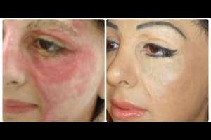 Un tatuador le devuelve el color de la piel con tinta, a una persona que sufrió de quemaduras en el rostro