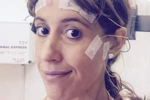 El año pasado Lisa Upton se sometió a una craneotomía de 10 horas de duración durante la que estuvo totalmente despierta.