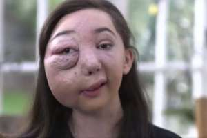 Nikki Christou padece AVM, un enfermedad de los vasos sanguíneos.