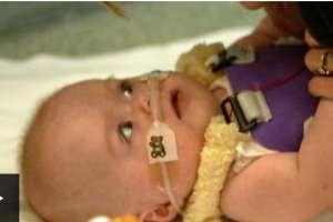 La bebé que nació con el corazón fuera del pecho.