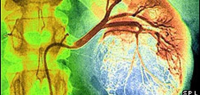 Los expertos dicen que una política global podría reducir la incidencia de muchos de los cánceres tratables.