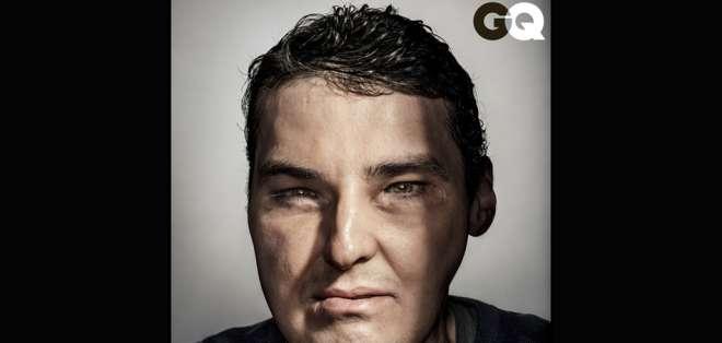 EE.UU.- En una operación de 36 horas, cirujanos transplantaron a Richard Norris (39) un rostro de 21 años. Foto: BBCMundo.com