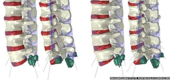 Los robots pueden hacer las cirugías una experiencia mucho menos traumática, con heridas que sólo necesitan tiritas.