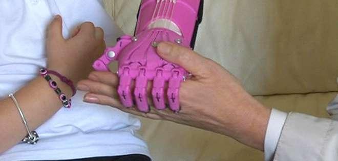Una empresa fabrica una mano con una impresora 3D por menos de US$100.