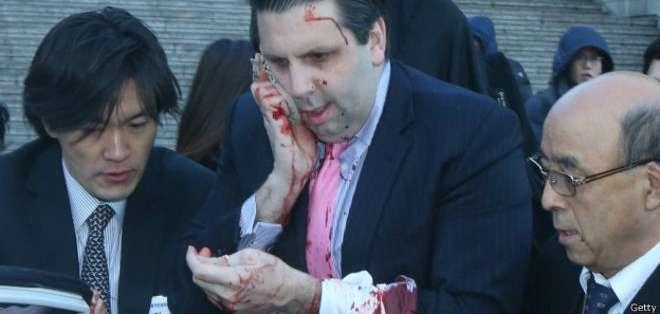 COREA DEL SUR.- Mark Lippert fue atacado con un arma blanca el pasado jueves.