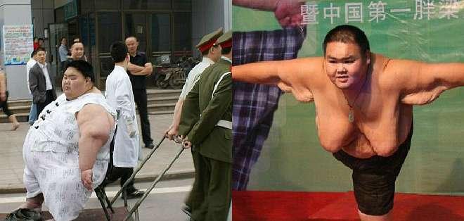 Liam Yong, de 26 años, fue considerado en el 2007 como el hombre más gordo de China.