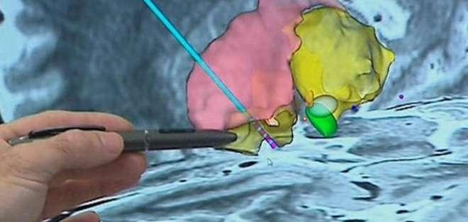 A la paciente le colocaron los electrodos en una zona profunda del cerebro que registra lo que siente cuando come.