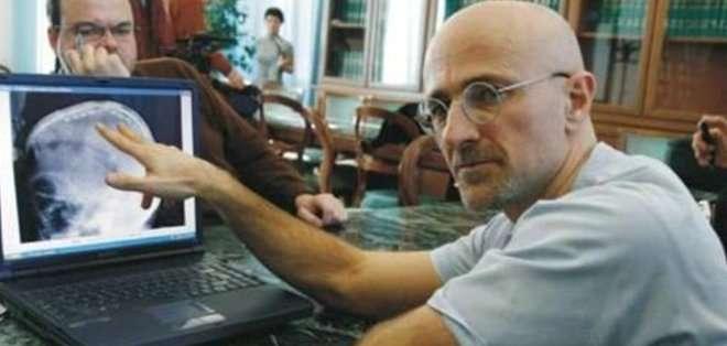 Sergio Canavero, reveló hace dos meses que realizaría el primer trasplante de cabeza del mundo en dos años.