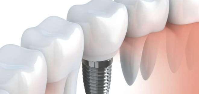 Los dentistas están notando cada vez más casos de peri-implantitis, infección de las encías asociada a los implantes dentales.