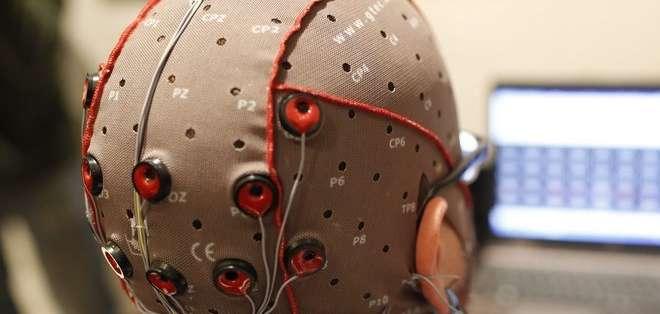 CIENCIA.- La estimulación cerebral con electrodos aplicada sin dolor será una práctica habitual en diez años. Foto referencial