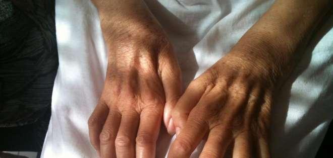 La ELA es una devastadora enfermedad que afecta a las neuronas motoras.
