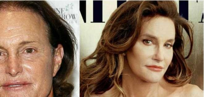 Caitlyn Jenner es el nuevo nombre del excampeón olímpico estadounidense, Bruce Jenner.