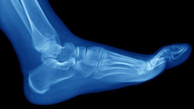 Las fracturas por estrés suelen ocurrir en los huesos de la parte inferior de la pierna y el pie, como la tibia y el peroné, los metatarsos, el talón y el tobillo.
