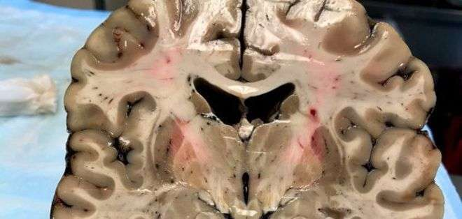 A pesar de su apariencia saludable exterior, el cerebro de Hernández estaba profundamente dañado por la encefalopatía traumática crónica. (Foto: Boston University)