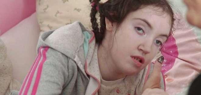 Bridget Buck, de 19 años, nació con discapacidad severa después de que su madre siguiera un tratamiento con valproato de sodio.