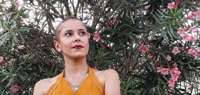 Karina comenzó a arrancarse el cabello a los 9 años y asegura que cuando lo hace, no se da cuenta.