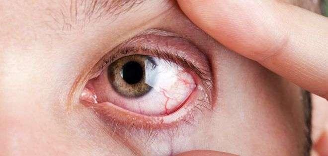 La disputa se da por una medicamento para tratar los ojos resecos.