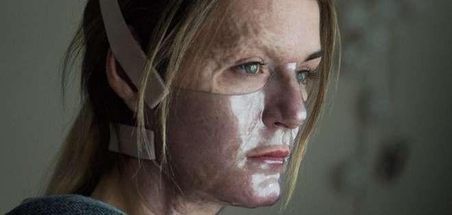 Vicky Knight odió sus cicatrices desde que era niña hasta que la actuación la salvó.