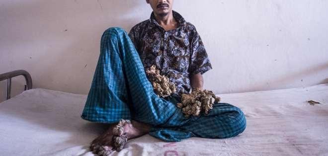 Abul Bajandar, de 28 años, sufre epidermodisplasia verruciforme. Foto: AFP