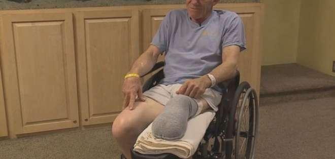 Atrapado en una máquina se amputa una pierna en EEUU. Foto: ABC