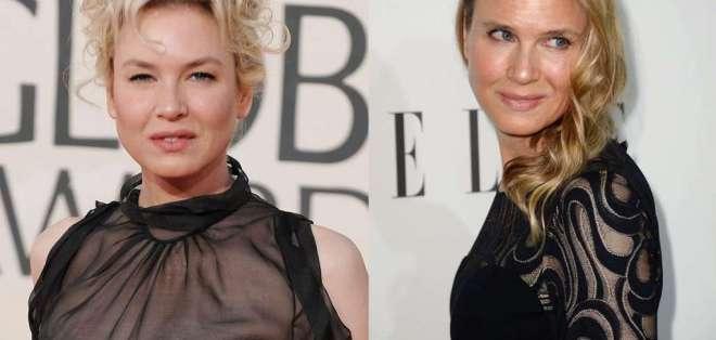 Hace cinco años la actriz fue criticada por la apariencia de su rostro. Fotos: AP