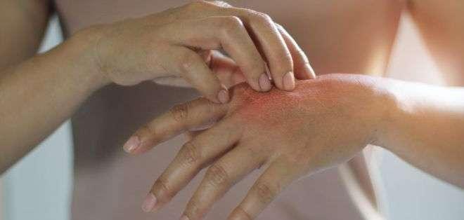 """Las personas pueden pellizcar o rascar lunares, pecas o cicatrices para """"suavizarlos"""". Getty Images"""