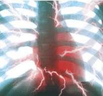 Un escaner permite iluminar las zonas peligrosas de las arterias y detectar un posible ataque cardíaco. Foto: BBC