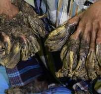 BANGLADESH.- Un equipo médico de nueve personas retiró las verrugas gigantes en tres horas y media. Foto: Internet