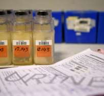 Las pruebas de orina se realizan para verificar si algun jugador se dopa. Foto: AFP