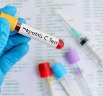 El virus de la hepatitis mata a 1,34 millones de personas por año, según la OMS.