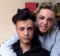 El ataque a James y Dain los dejó con bastantes cicatrices físicas y emocionales.