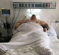 Médicos espera que pierda más de 200 kilos con esta intervención. Foto: AFP