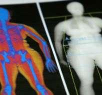 ¿Es posible tener un peso saludable y sin embargo tener demasiada grasa por dentro?