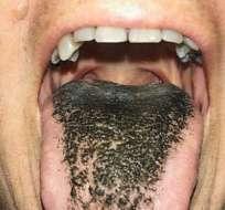 La mujer dijo experimentar nauseas y mal sabor en la boca. Foto: THE NEW ENGLAND JOURNAL OF MEDICINE