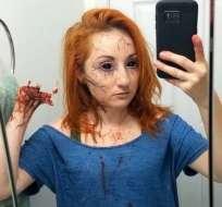 April usa su creatividad para destacar sus discapacidades en Halloween.