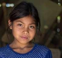 Sandra Magali vive en Chiquimula, Guatemala. A sus 9 años tiene la estatura de una niña de 6. Foto: YS ARANGO