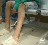Prisión preventiva para quien agredió a niño por coger mangos. Foto: captura de video
