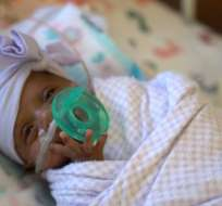 """La bebé """"más pequeña del mundo"""" sobrevivió."""