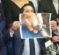 QUITO, Ecuador.- Aleaga mostró imágenes de las partes de su vehículo que aparentemente habrían sido alteradas.