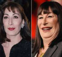 Anjelica Huston es víctima del mal uso del botox