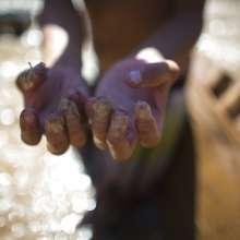 Un chatarrero de río muestra sus dedos cubiertos de cinta adhesiva mientras busca oro o cualquier cosa de valor que pueda vender en el fondo del contaminado río Guaire